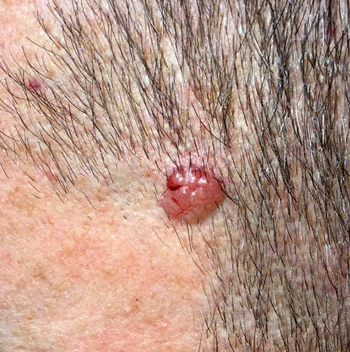 Nodular basal cell carcinoma on the temple. Raised, pearly consistency and blood vessels