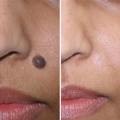 Mole removal on darker skin types sometimes leaves a paler area