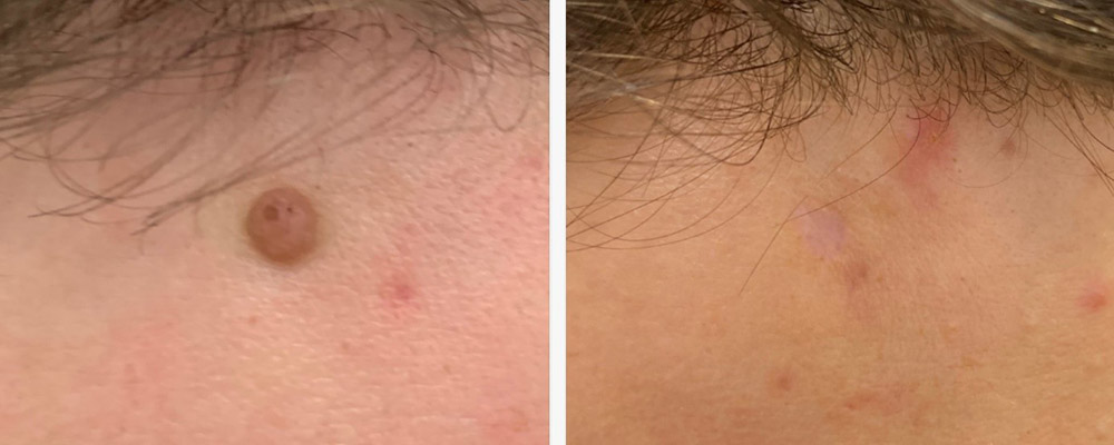 Forehead mole: before and 4 months after cosmetic mole removal