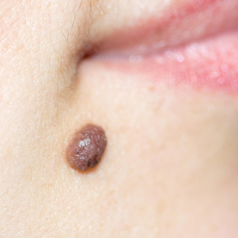 Dermal naevus (mole)