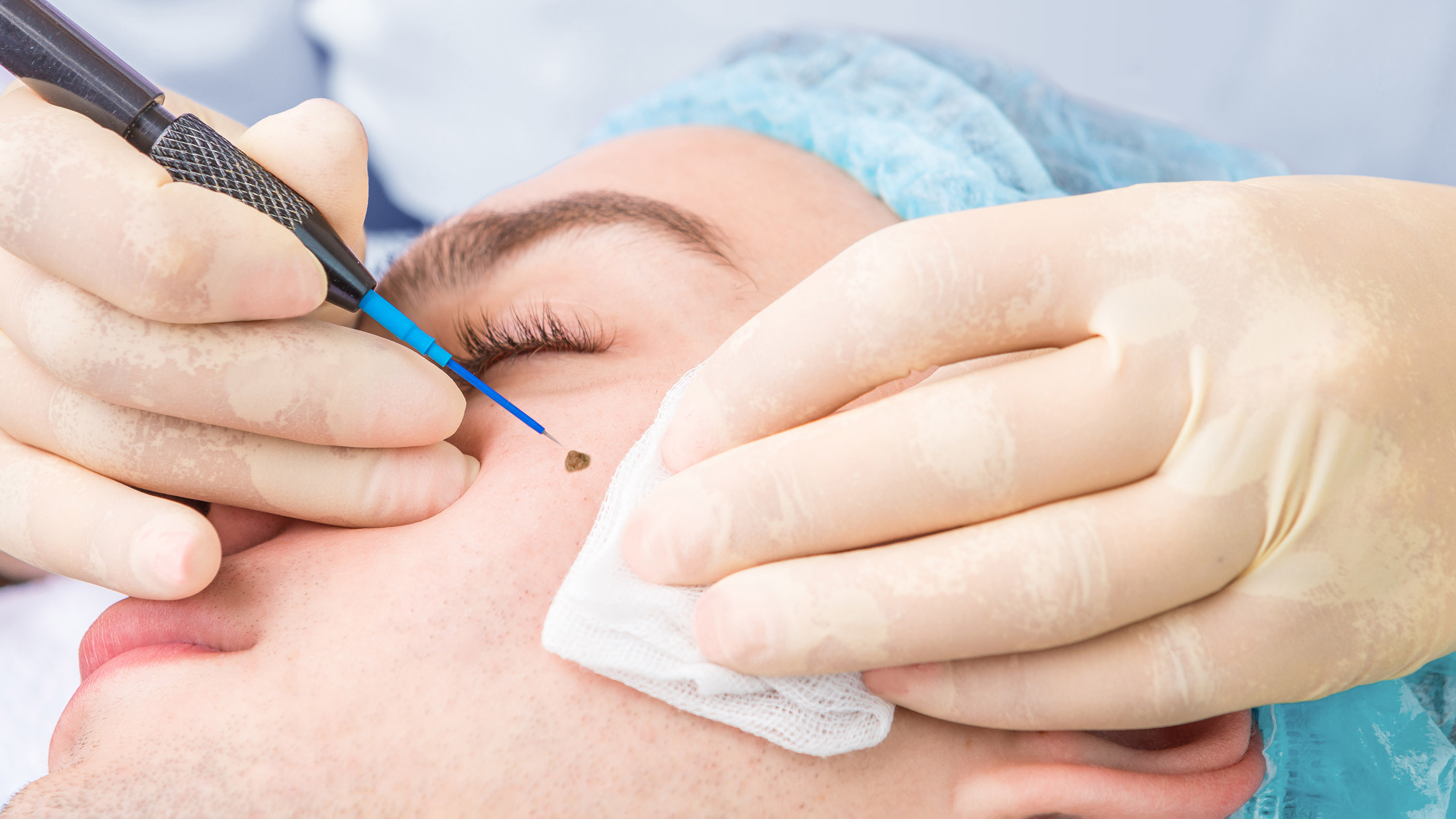 Radiofrequency cosmetic mole and skin lesion removal