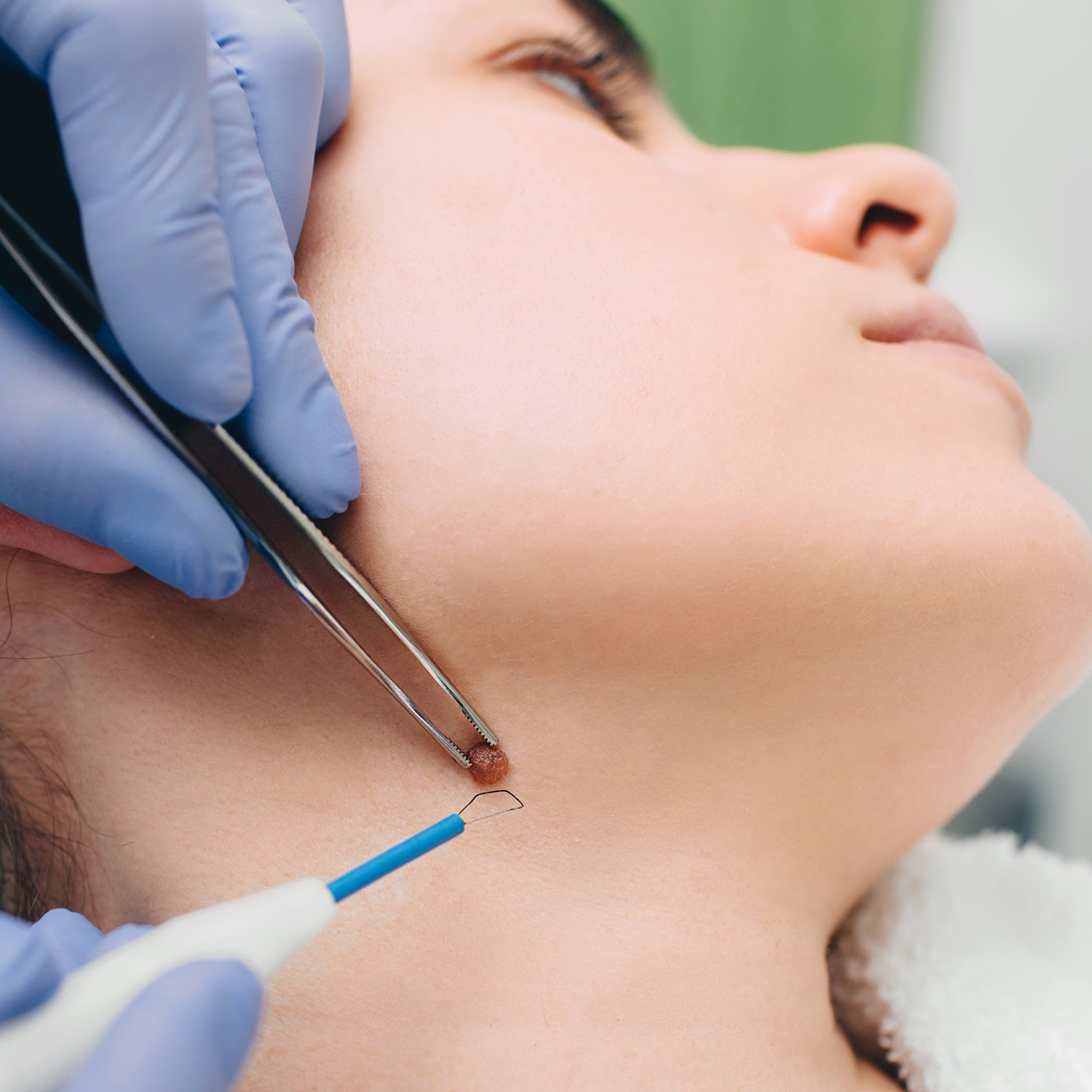 Low scarring mole removal now available