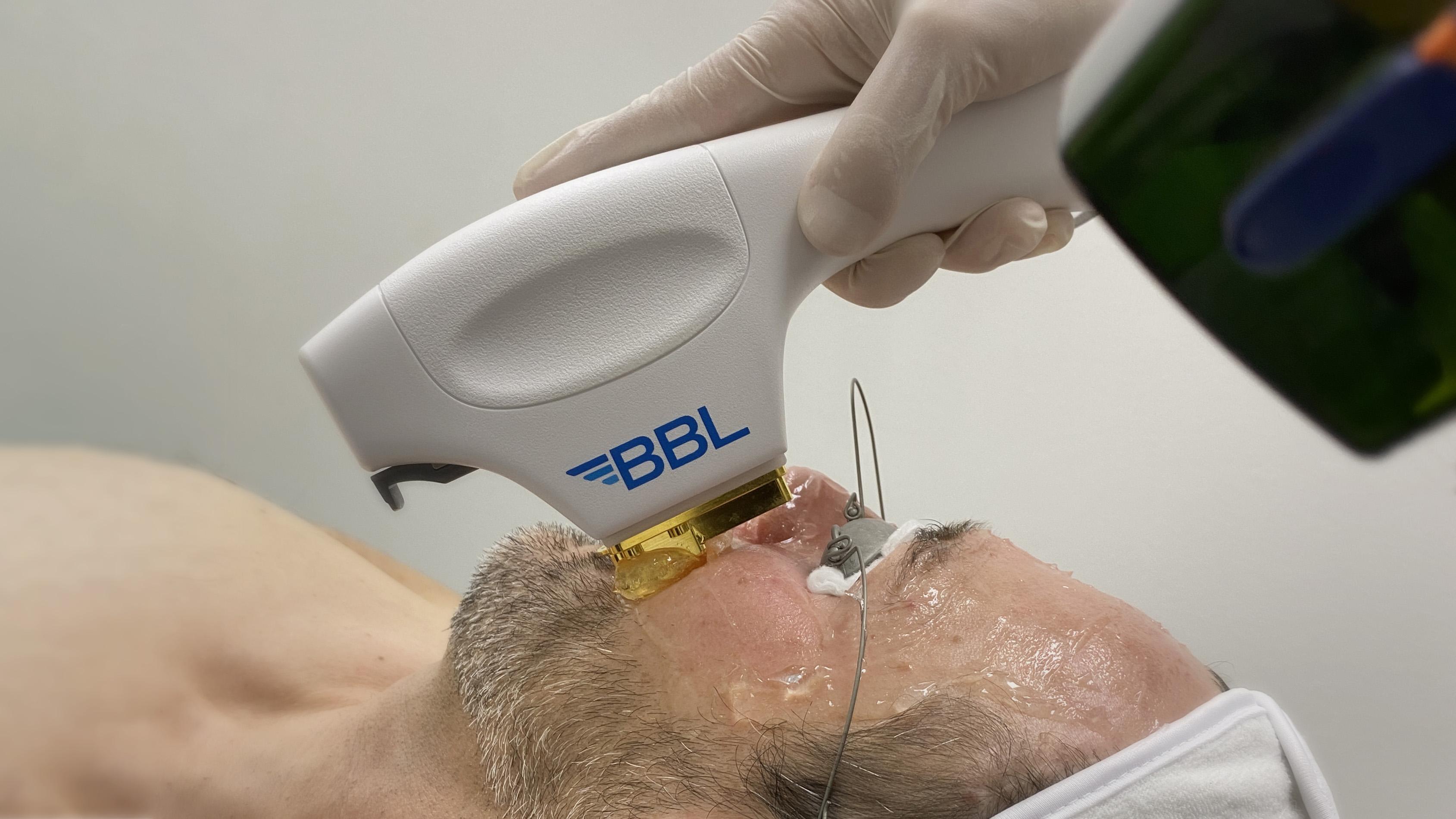 """Broadband light """"rejuvenates"""" skin cells"""