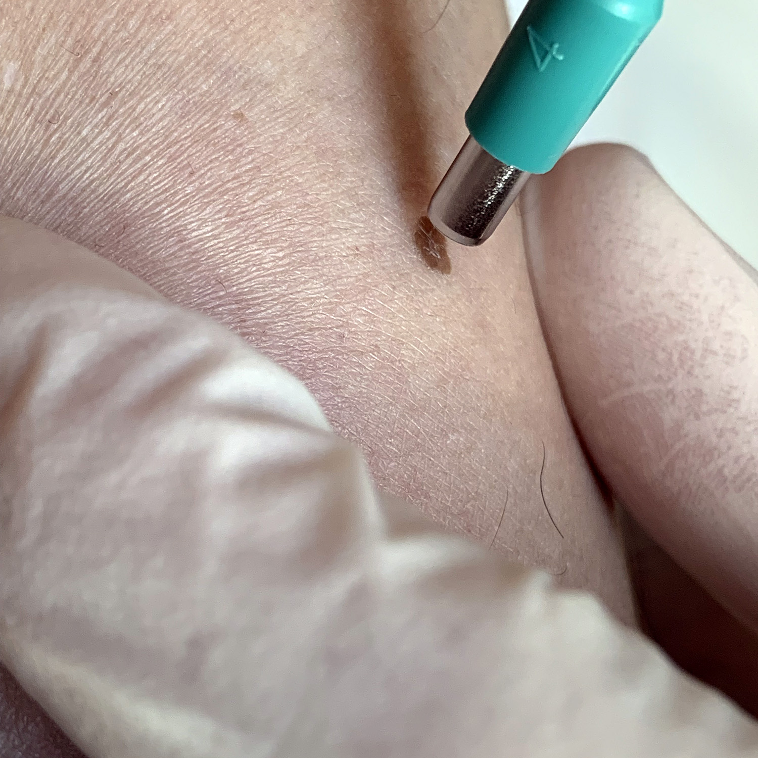 Punch biopsy aftercare
