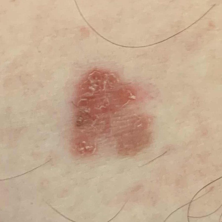 Bowen's disease