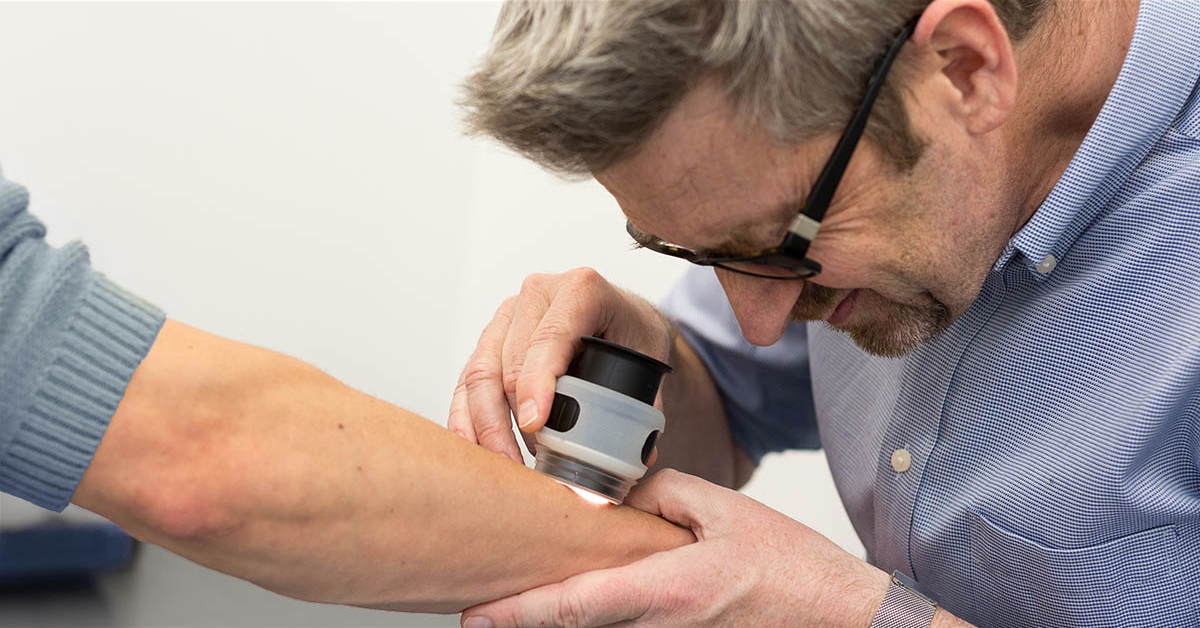 Doctor is examining a mole on a patient's using a dermoscope during a skin cancer check.