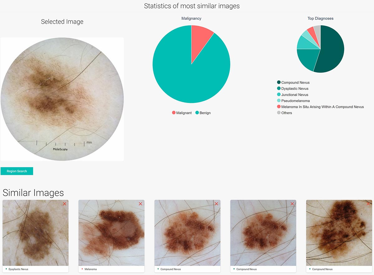 Dermengine software provides possible diagnosis by comparing mole with its database of results