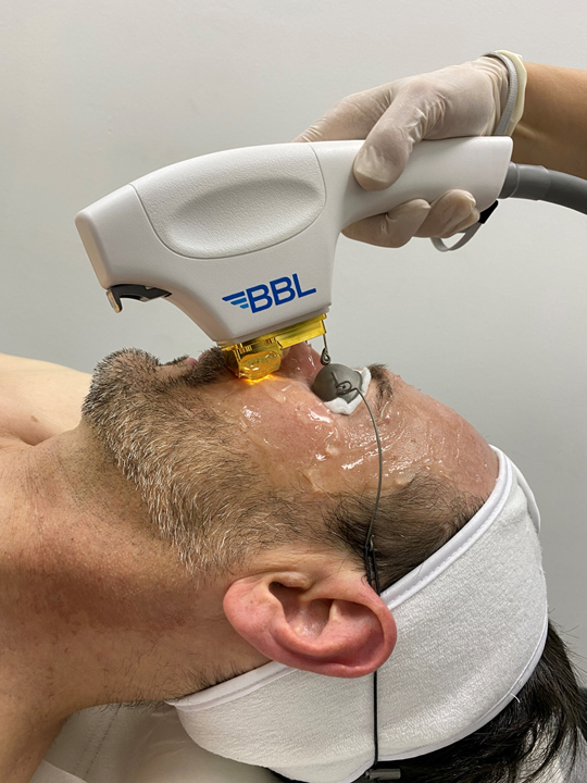 BBL treatment of the face