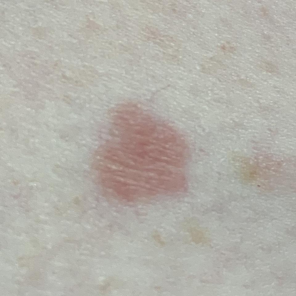 Lichenoid keratosis