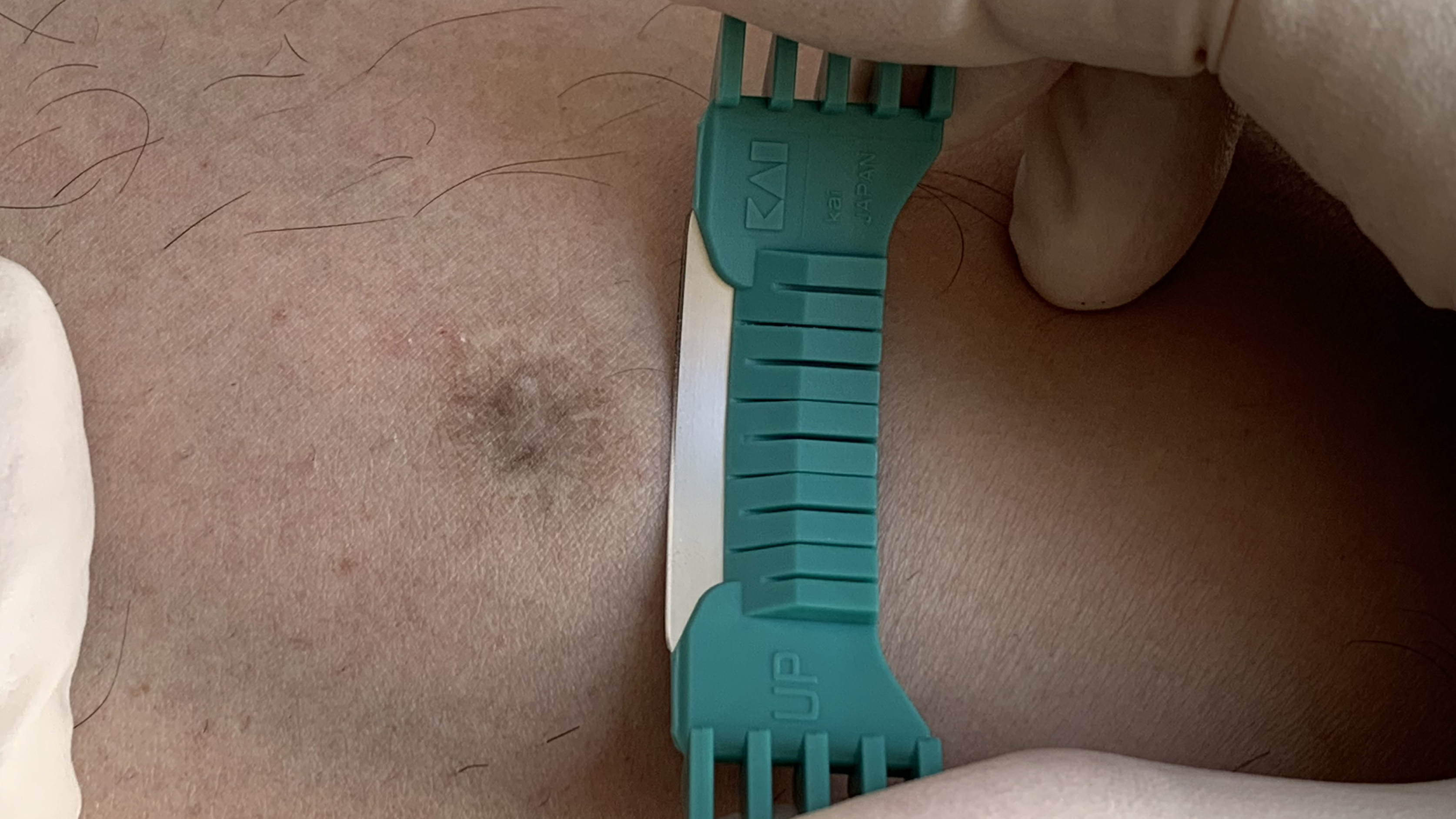 Shave biopsy and excision