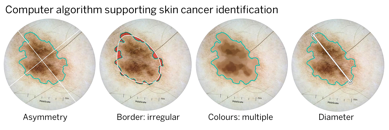 Computer algorithm supporting skin cancer identification