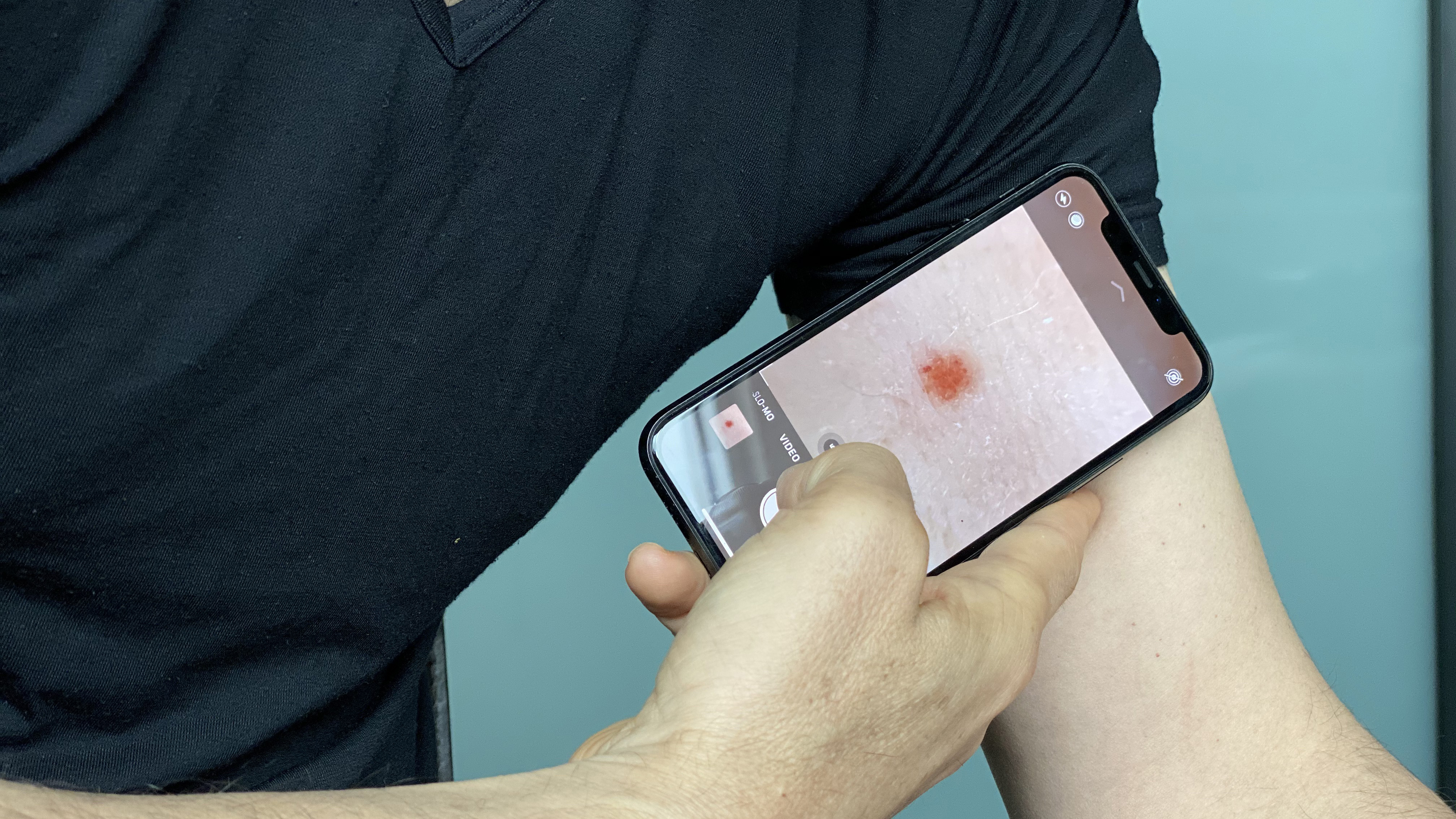 Photographing your skin lesions