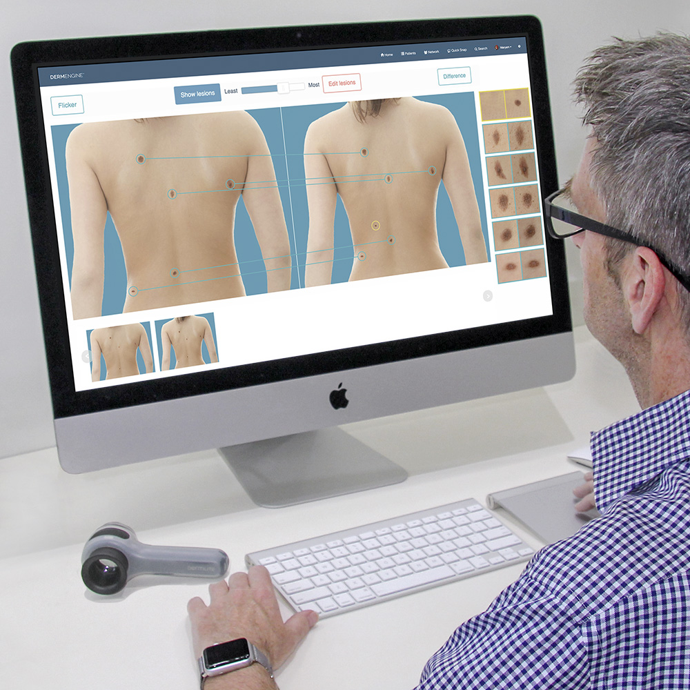 Mole mapping: a doctor looks at a screen displaying before and after mole mapping photographs