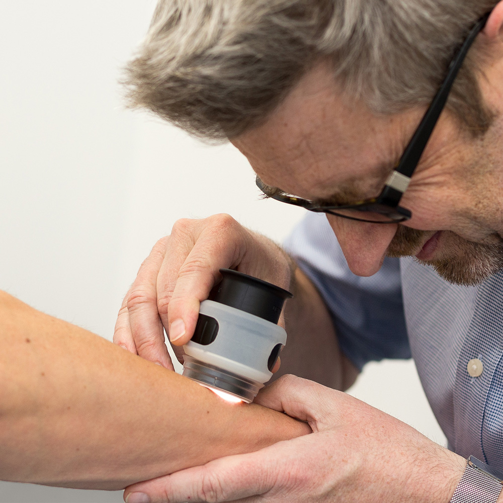 A doctor examines a patient's arm using a dermoscope