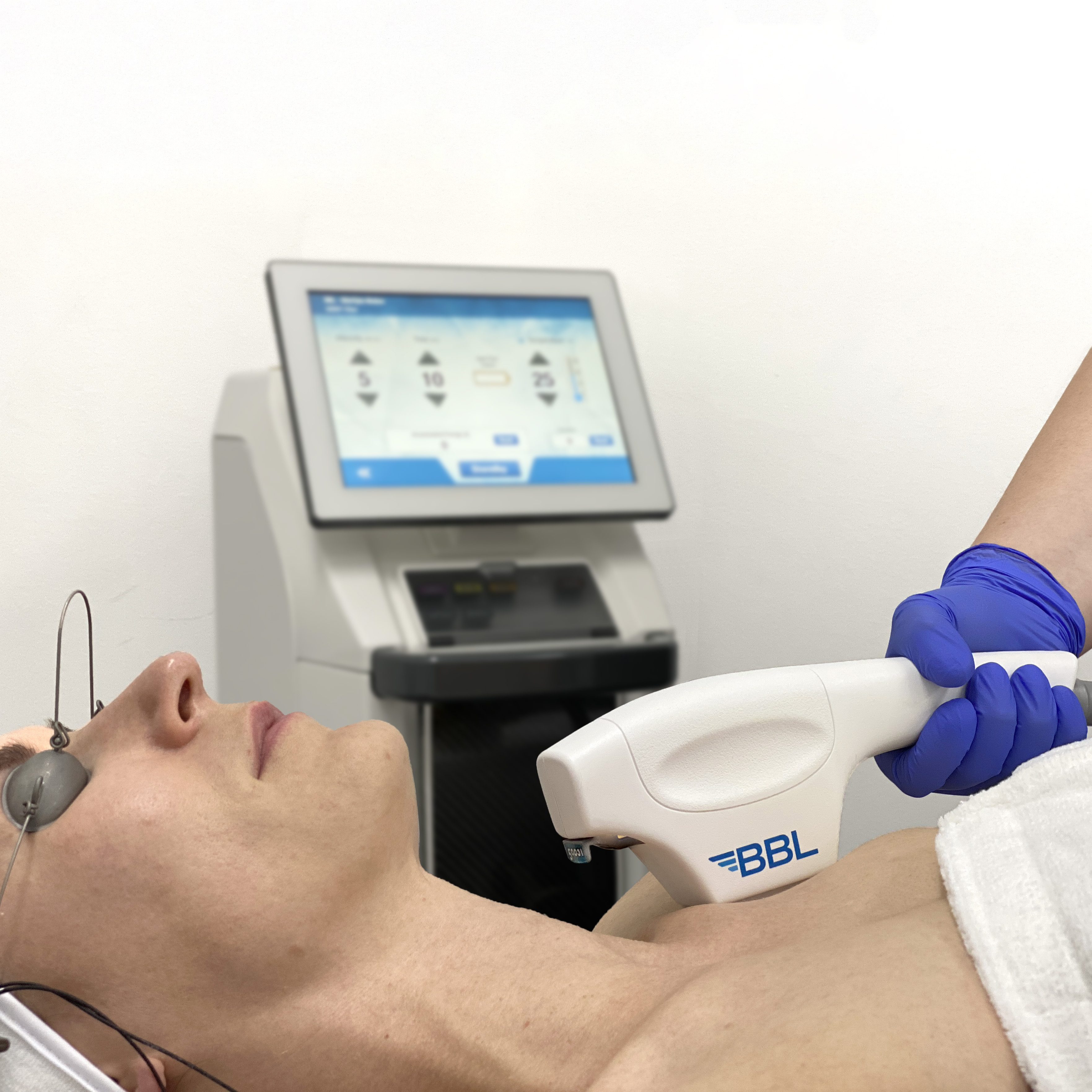 BBL treatment of a woman's chest