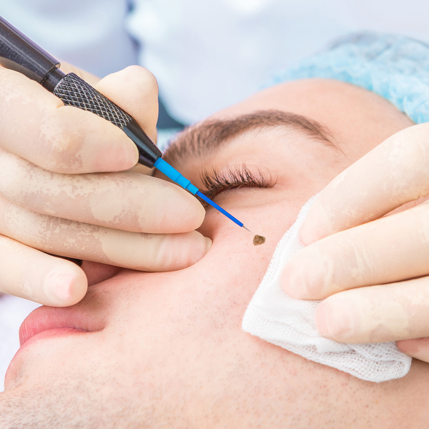 Radiofrequency removal of a mole on a man's cheek