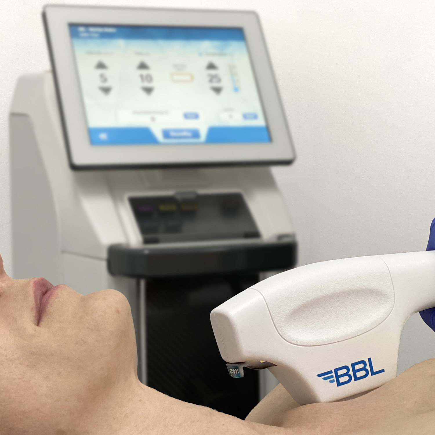 IPL treatment applied to a woman's arm
