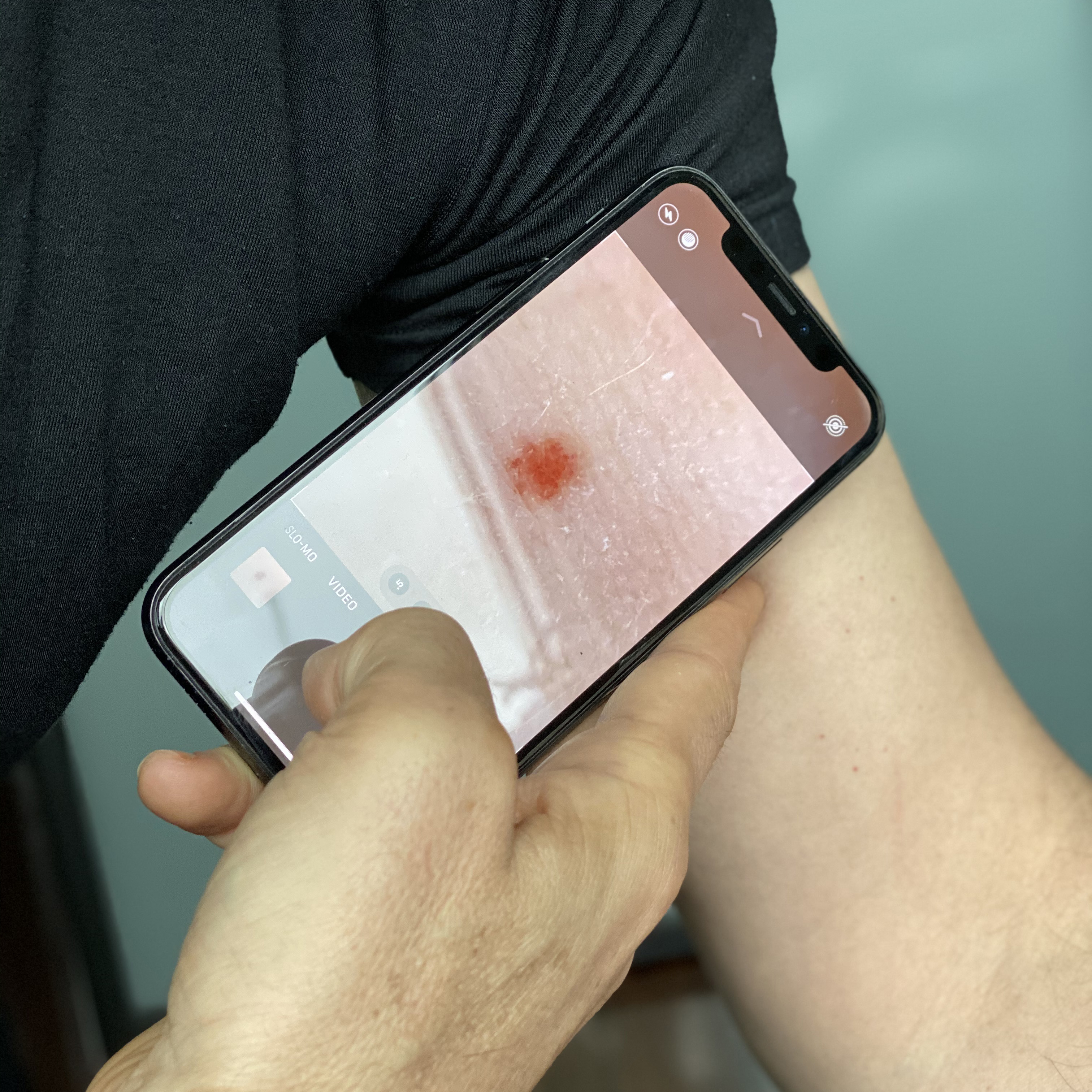 A man taking a photo of a mole on his arm, using a smart phone