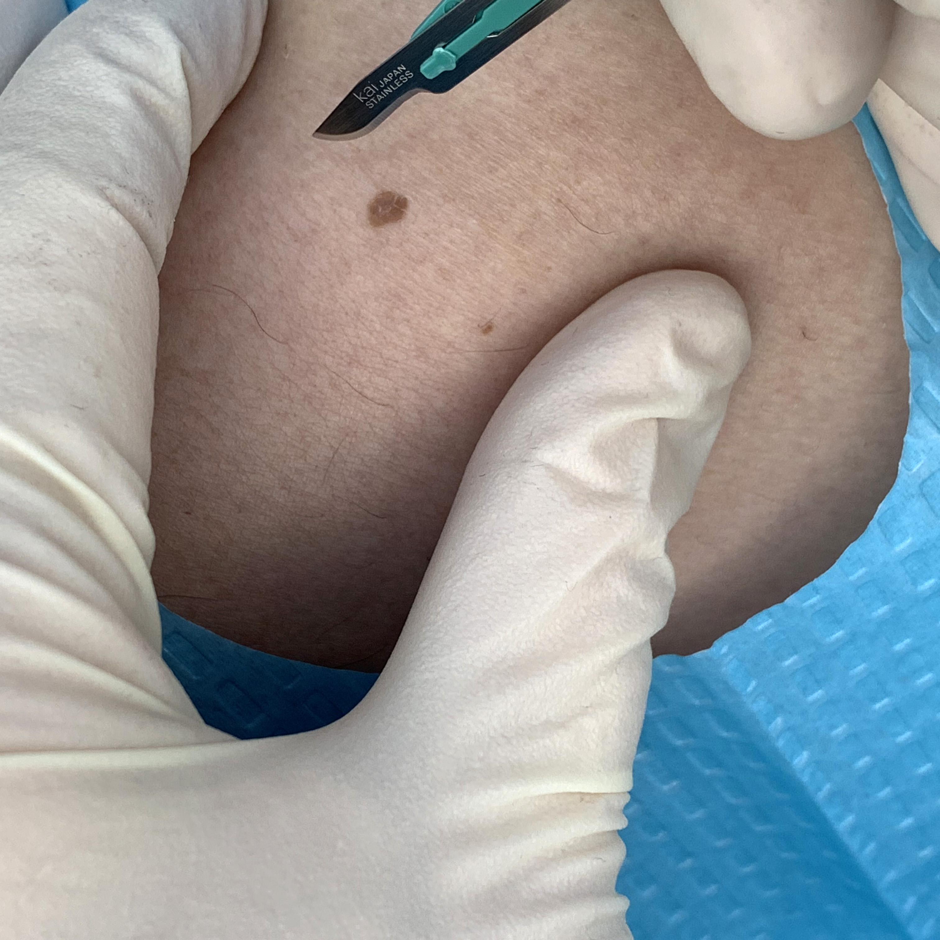 Skin excision procedure