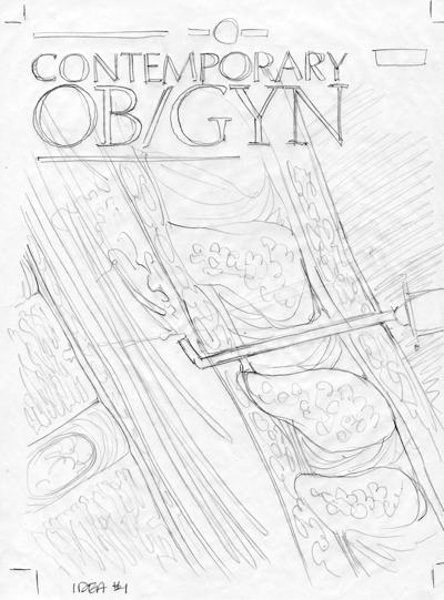 DNA Illustrations, Custom Illustration Sketch OBGYN Journal