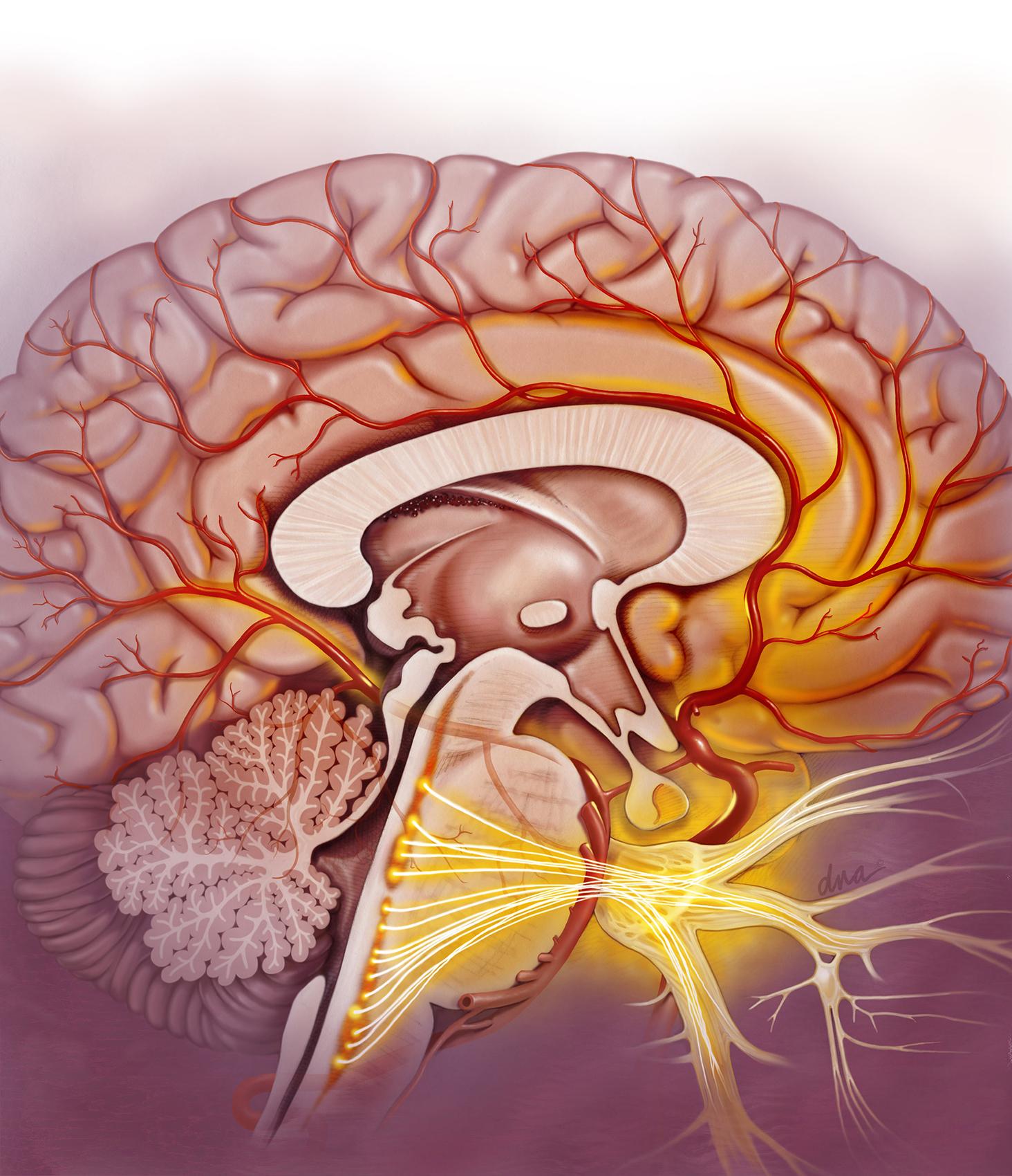 Estrogen and Migraines