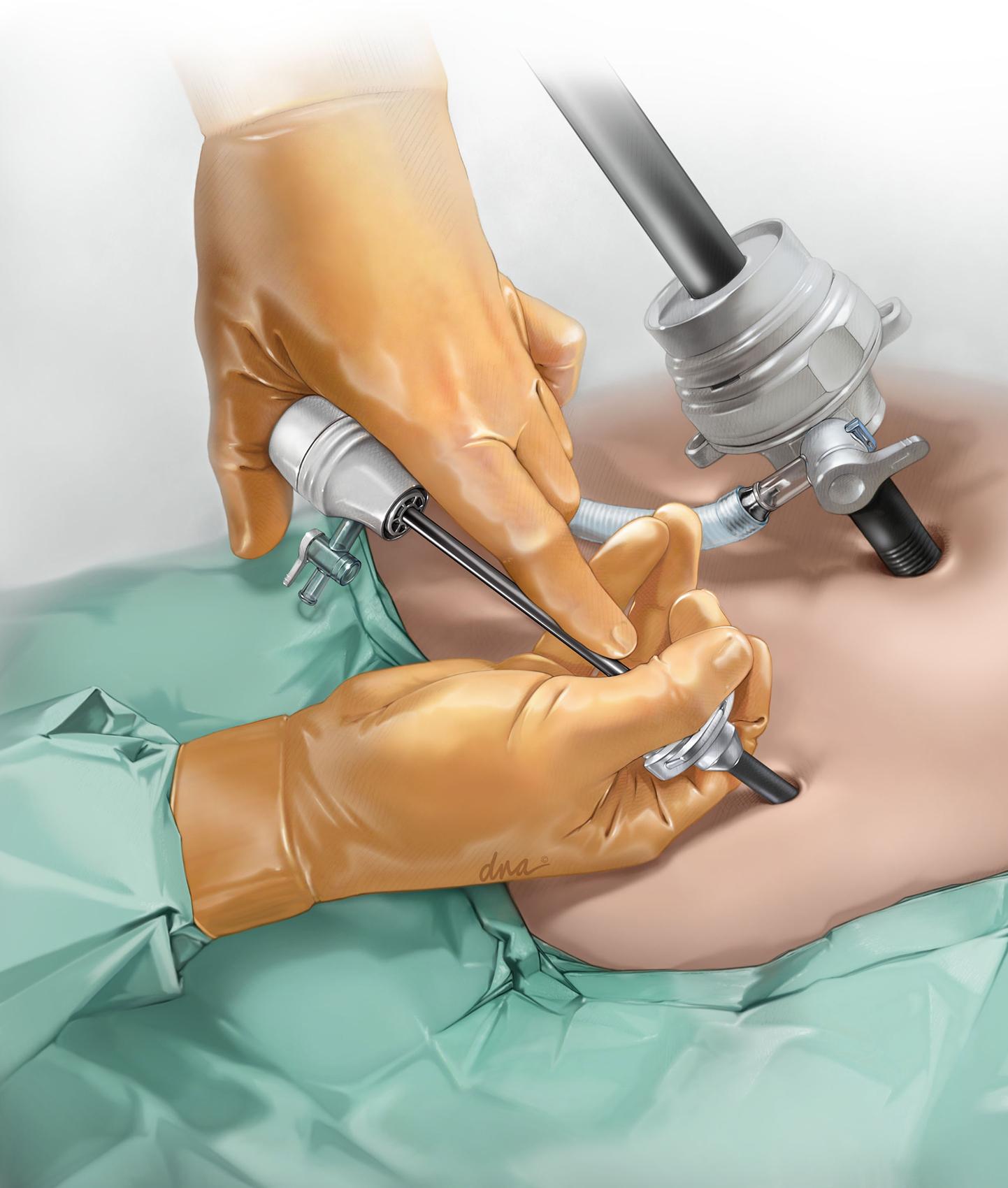 Mini Laparotomy
