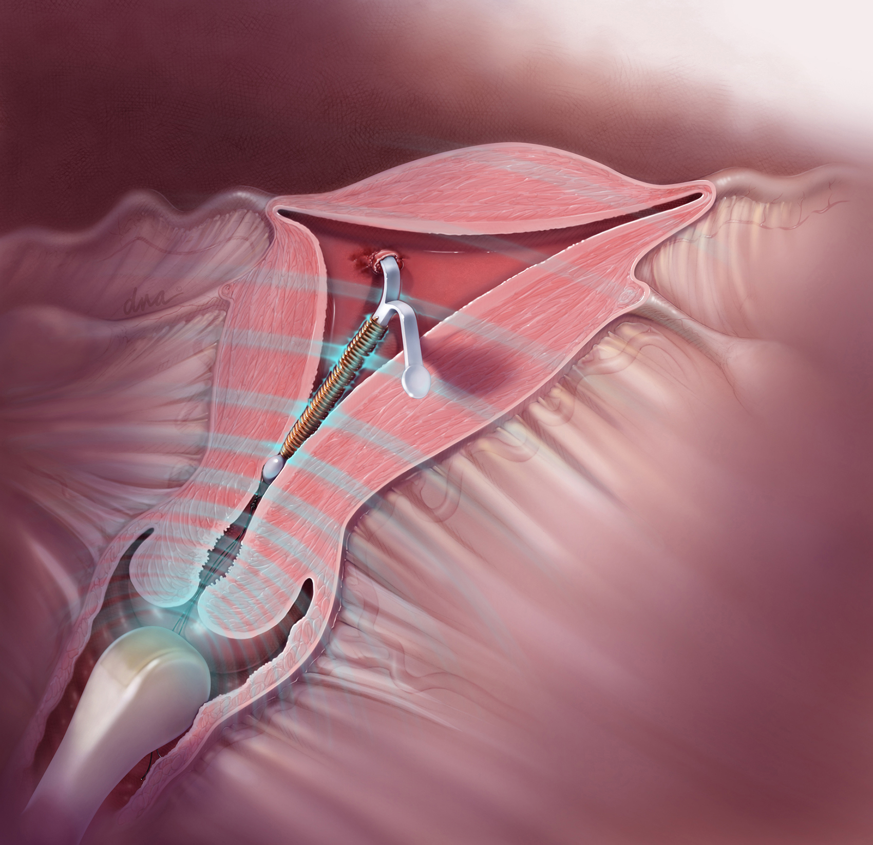 Embedded IUD Removal