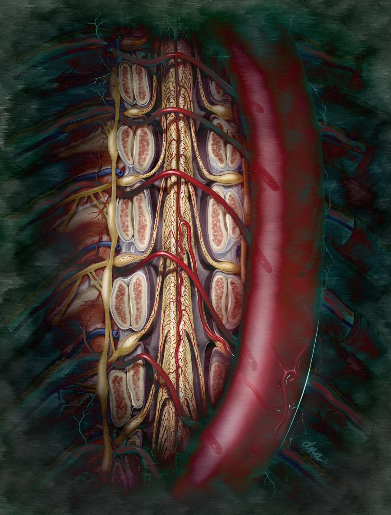Spinal Artery