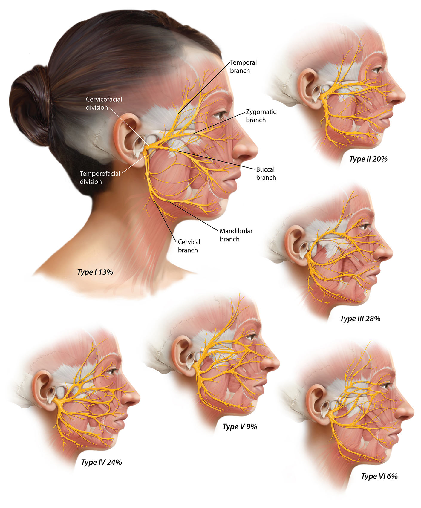 Facial Nerve Variations