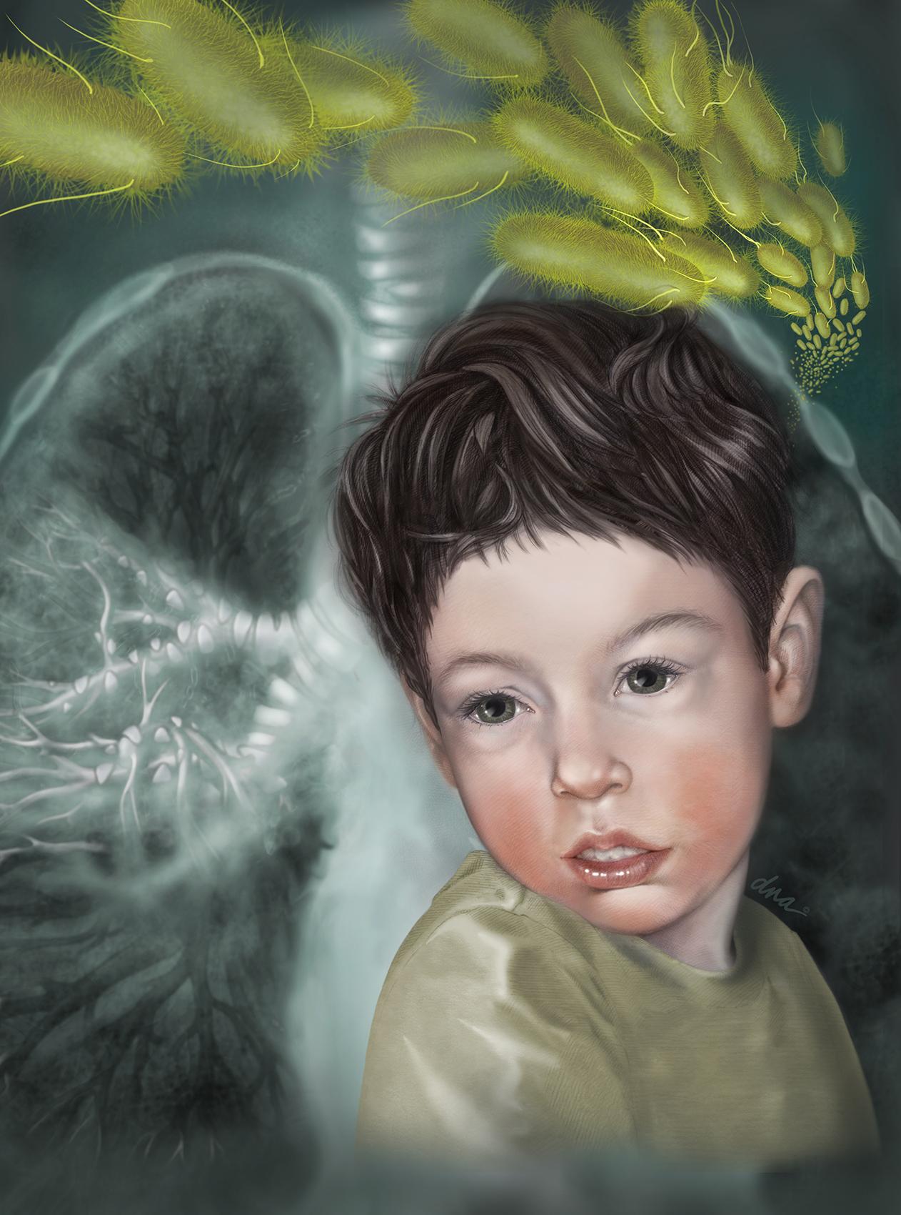 Pneumonia Pediatric