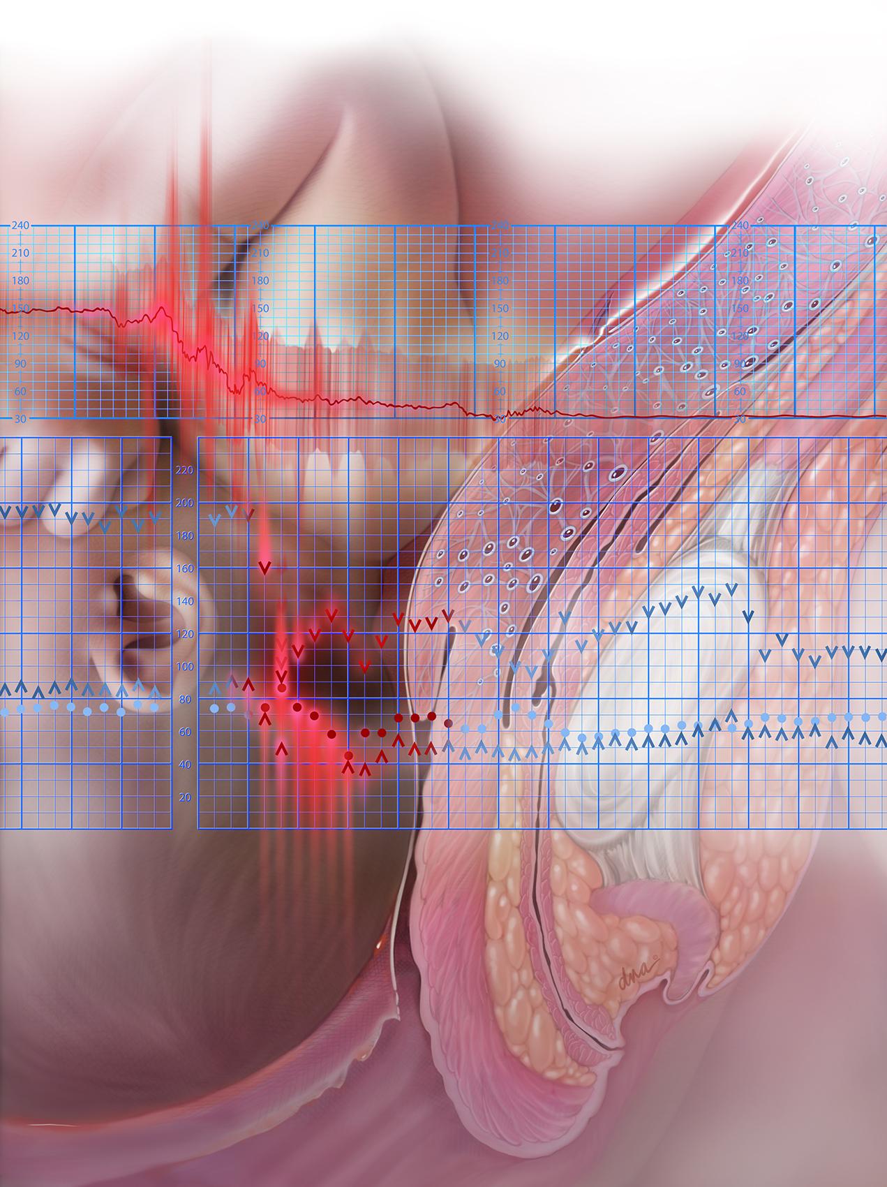 Amniotic Embolism