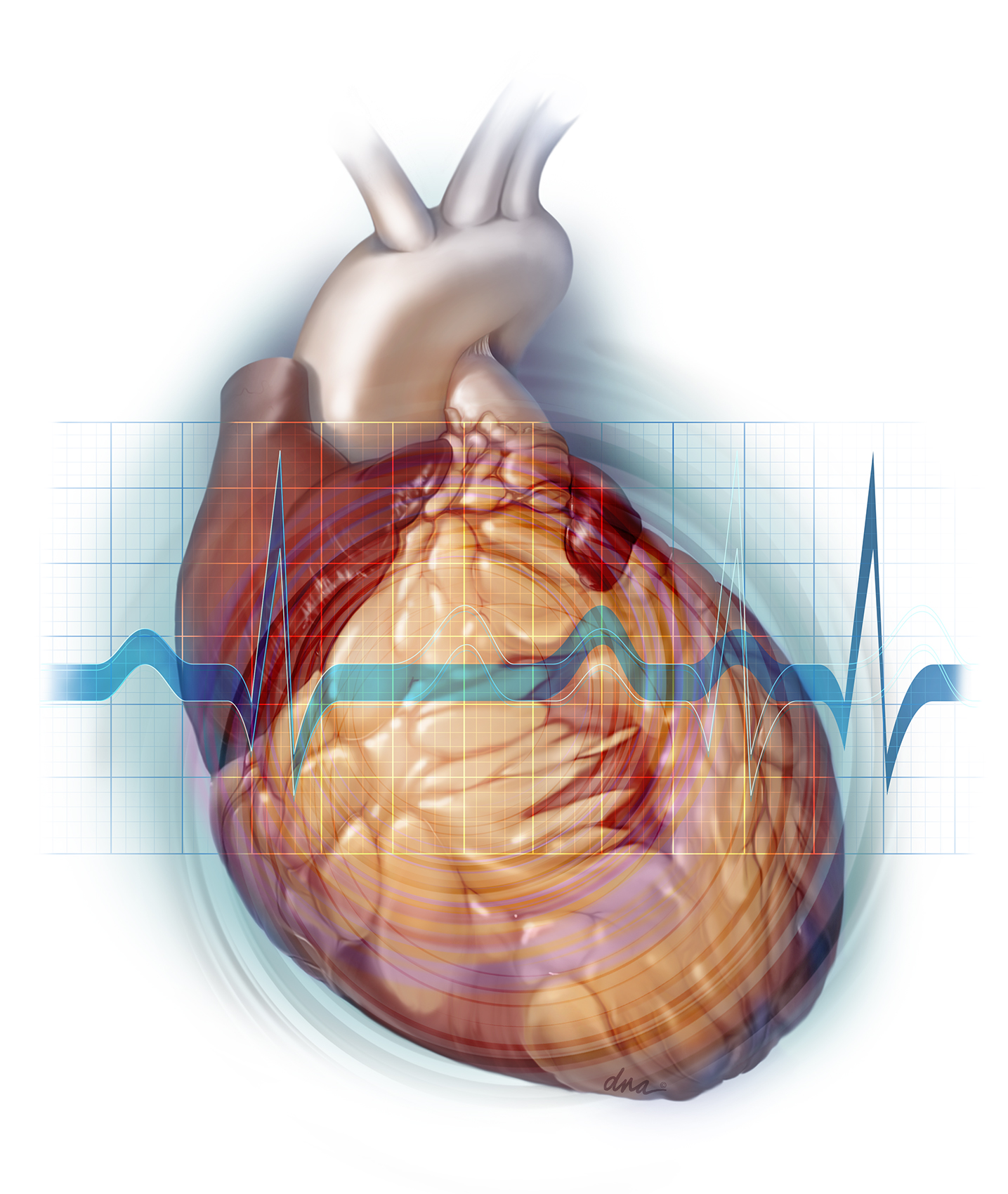Cardiotoxicity Resulting in Decreased Ventricular Function