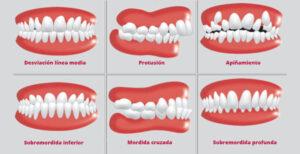 Odontología neurofocal: El dentista puede curar tu dolor de cabeza