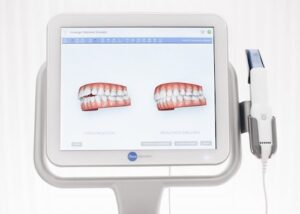 Escáner Intraoral 3D, tecnología respetuosa con tu organismo y el medio ambiente