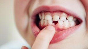 ¡Salva su diente! Qué hacer si a tu hijo se le cae o fractura un diente tras un golpe