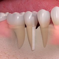 Implante Cerámico Equilibria Clinica Dental