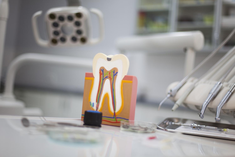 Endodonzia | Dott.ssa Rinaldi | Cura canalare