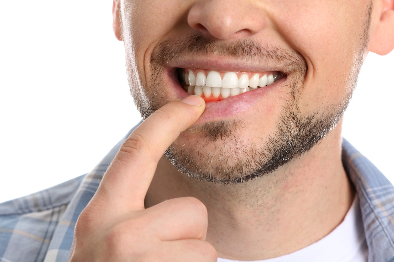Parodontologia   Dott.ssa Rinaldi   Cura parodontite