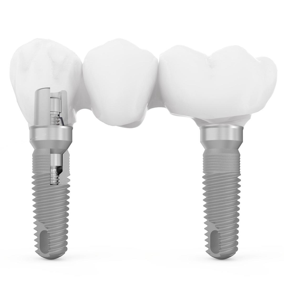 Implantologia   Dott.ssa Rinaldi   Impianto dentale