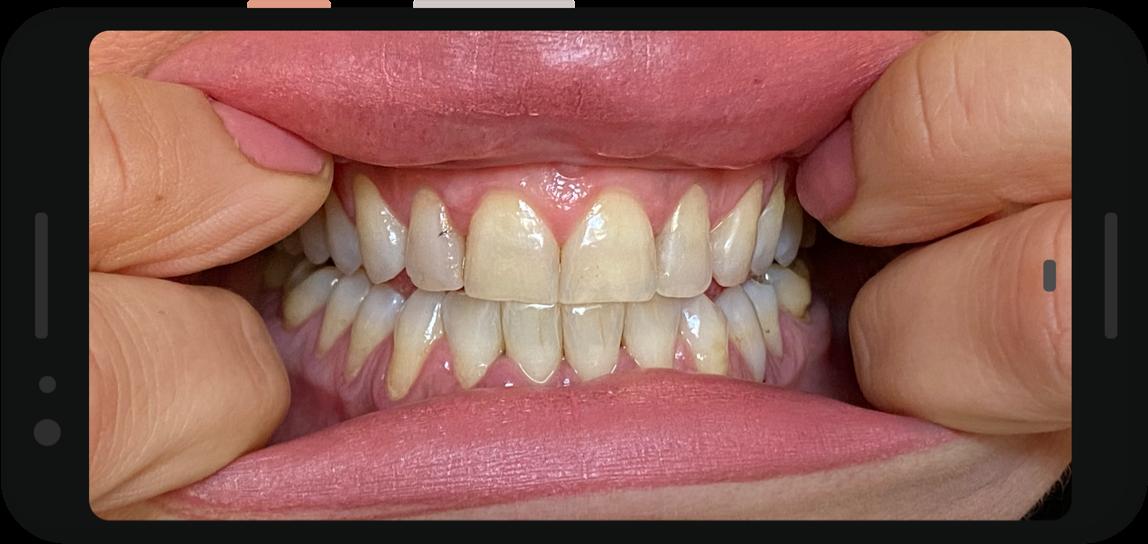 Consulenza Odontoiatrica Virtuale