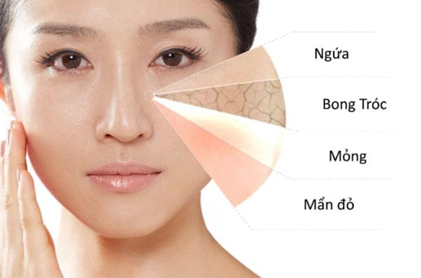 Da nhạy cảm là da như thế nào ?