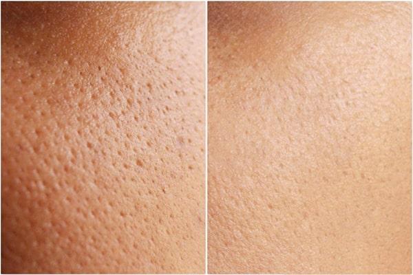 Cải thiện lỗ chân lông to giúp da đẹp hơn