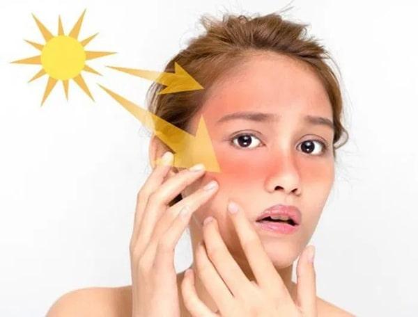 Kem chống nắng hóa học tiêu hủy tia cực tím