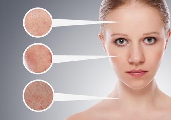 Kem trị nám giúp làm mờ và loại bỏ đốm nám trên da