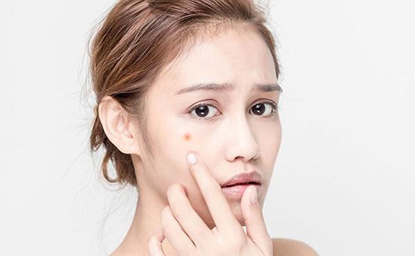 Hiểu rõ làn da trước khi chọn mua kem trị mụn