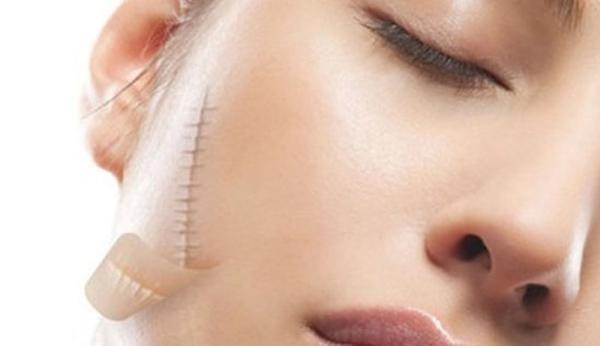 cách trị sẹo khâu trên mặt