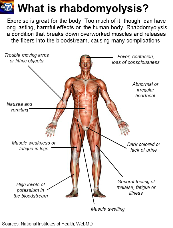 Illustration of a human muscular system
