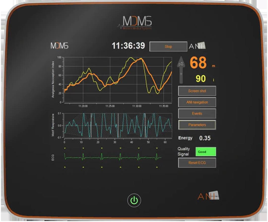 ANI Monitor MDoloris