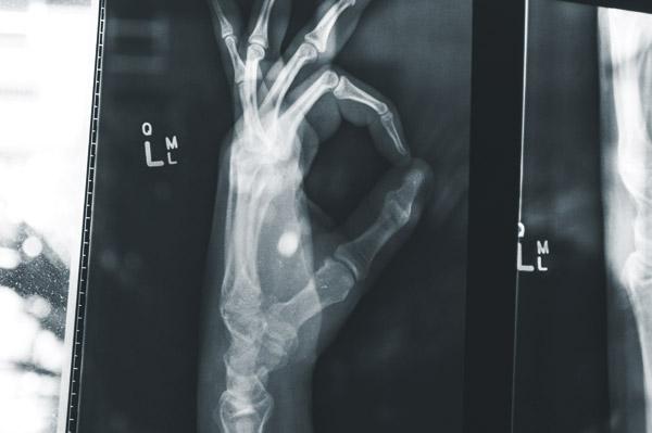 x-ray of hand for orthopedics
