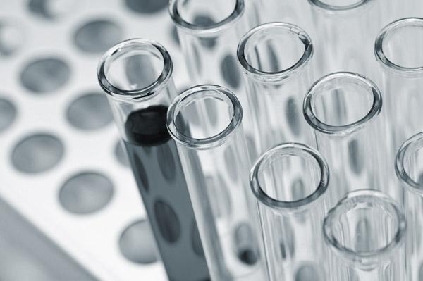 lab test tubes